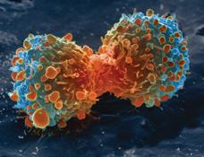 Lung Cancer Cell Division