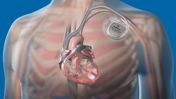 Medtronic Attain Performa Quadripolar Lead