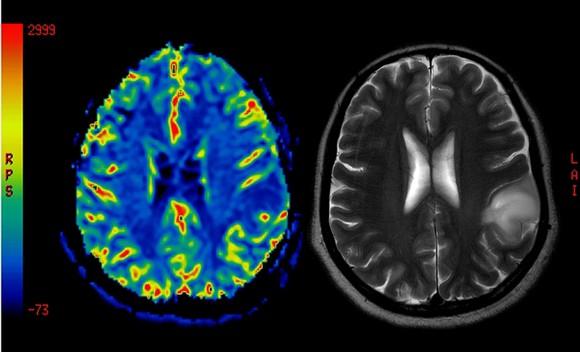 Brain Ccancer