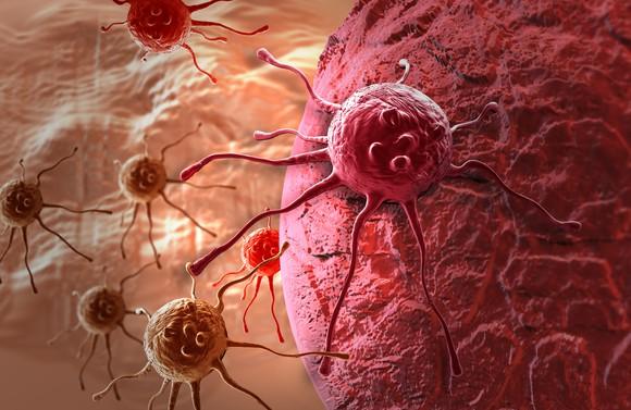 Blood cancer.