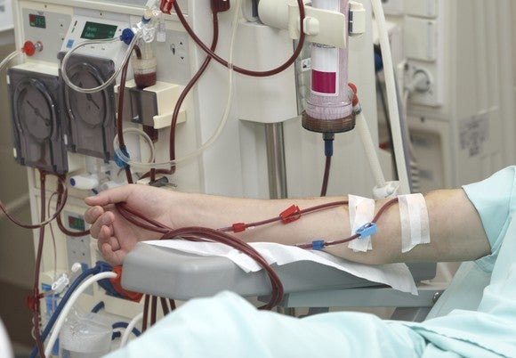 Patient's arm hooked up to a dialysis machine.