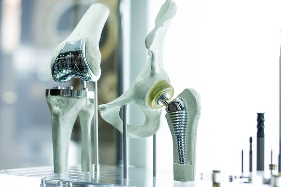 Artificial knee and hip replacement joints