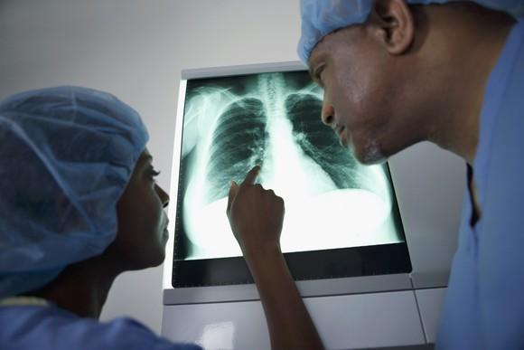 Surgeons examining a lung X-ray.