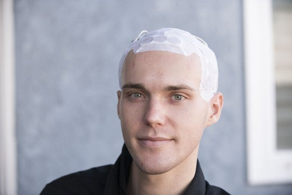 A patient wearing Optune on his head