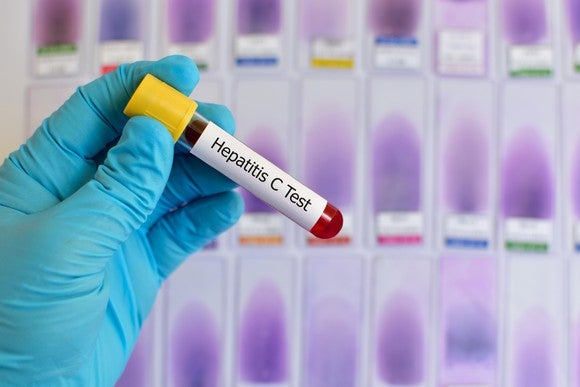 """A gloved hand holding a capped tube with a label that says """"Hepatitis C Test"""" on it"""