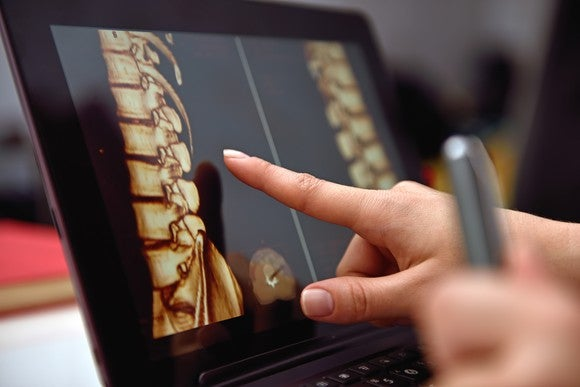Finger pointing at image of a spine on a laptop screen