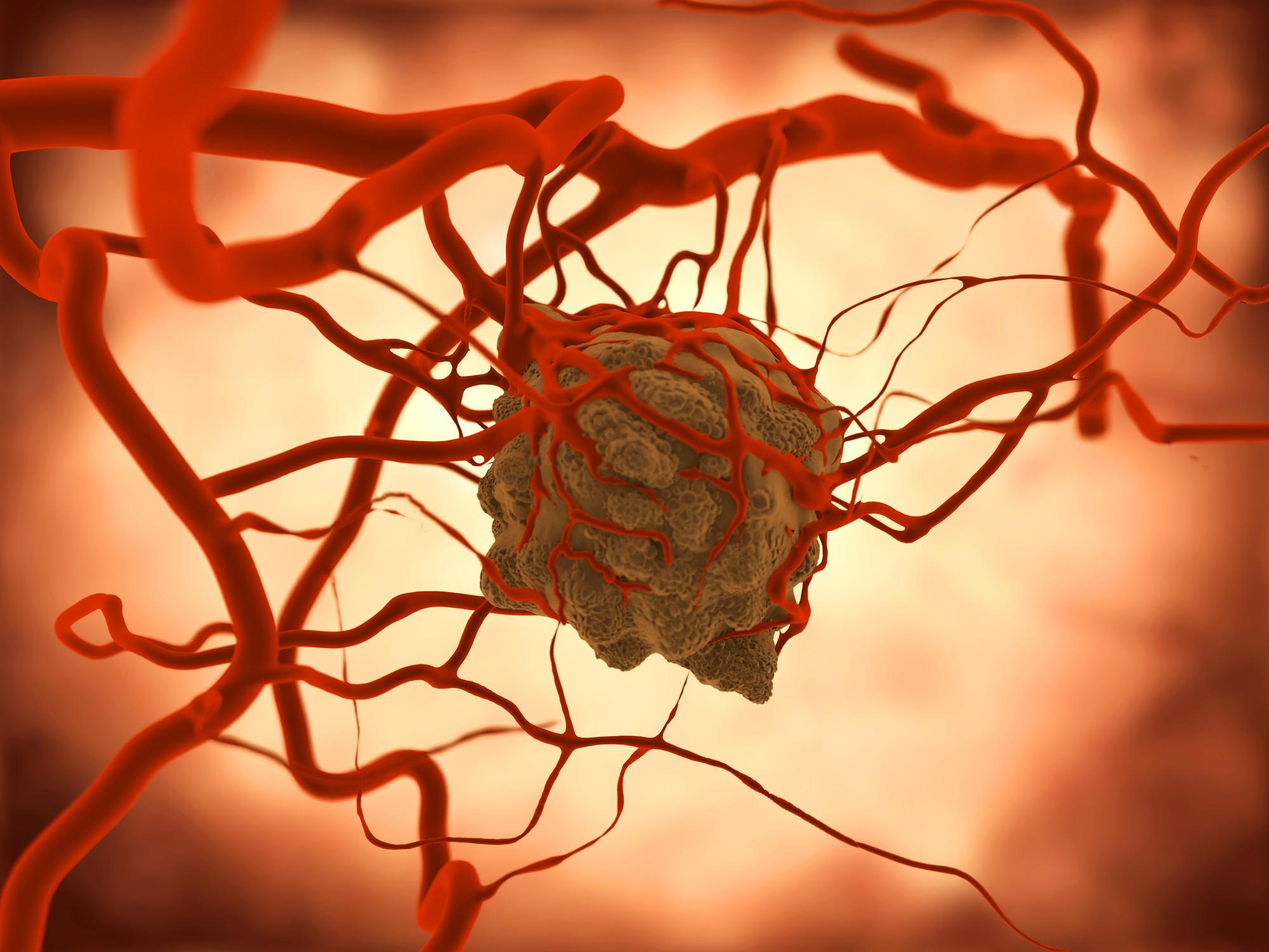 Ацинарная аденокарцинома предстательной железы