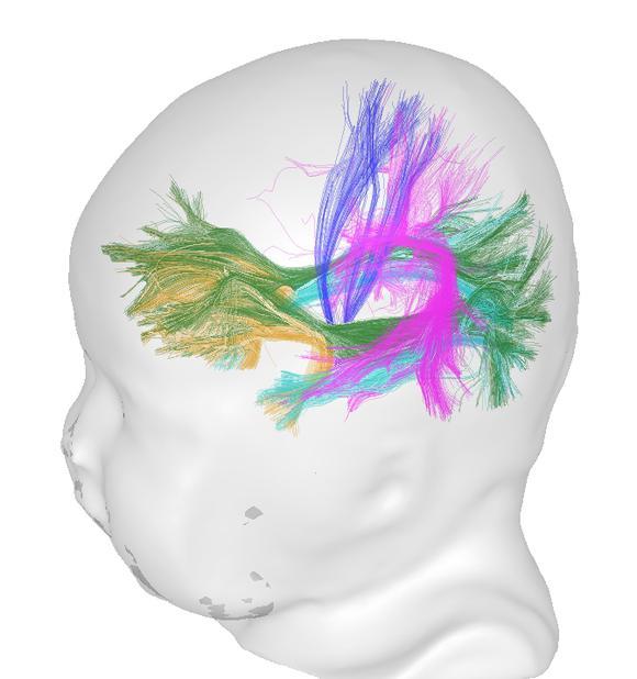 Brainfibers