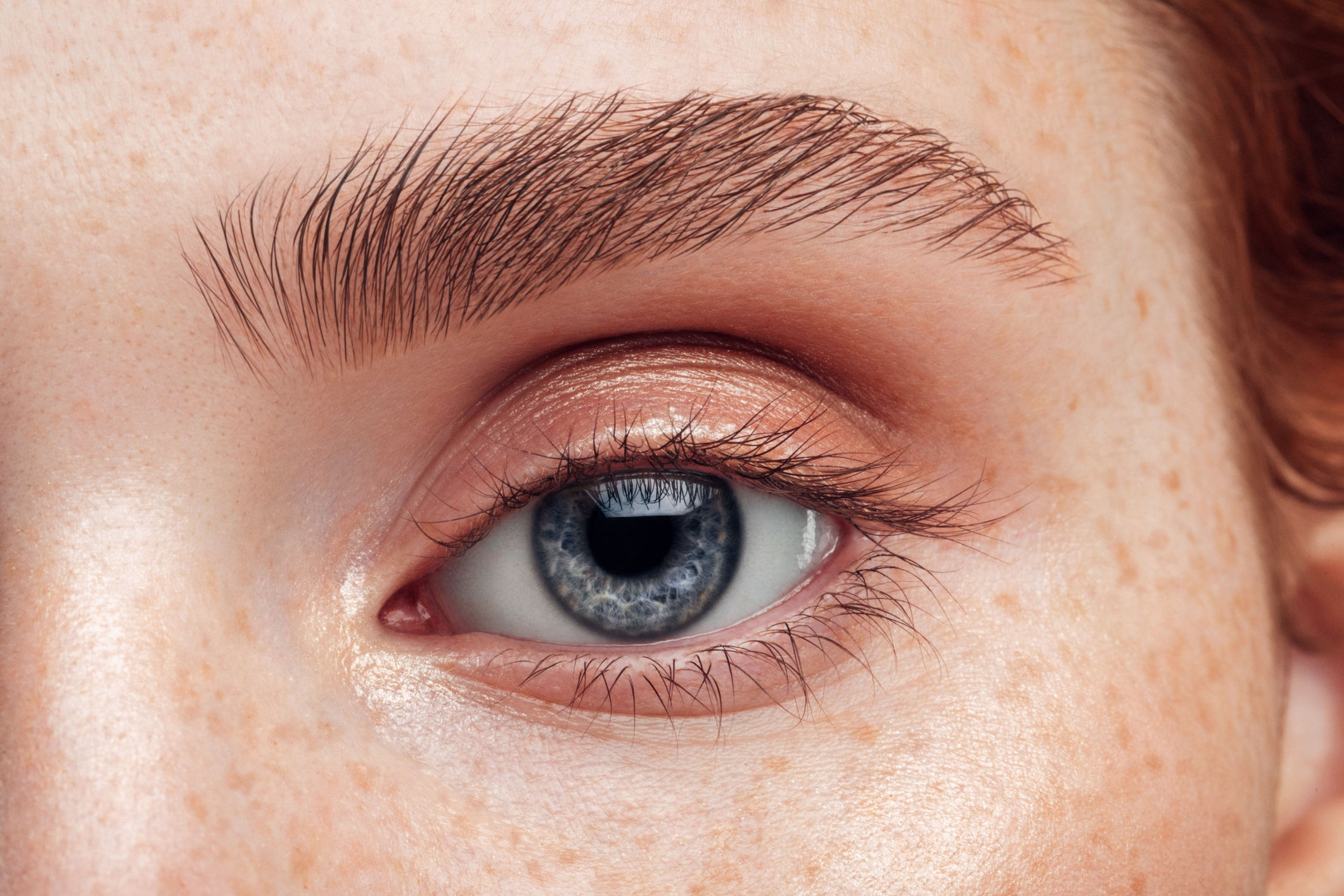 Fda Approves First Ever Treatment For Thyroid Eye Disease The