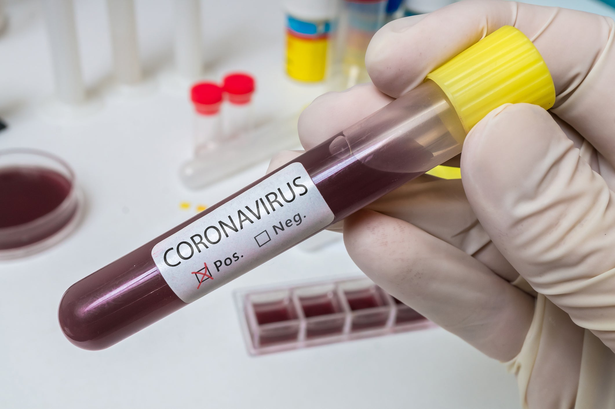 hand holding vial with coronavirus label
