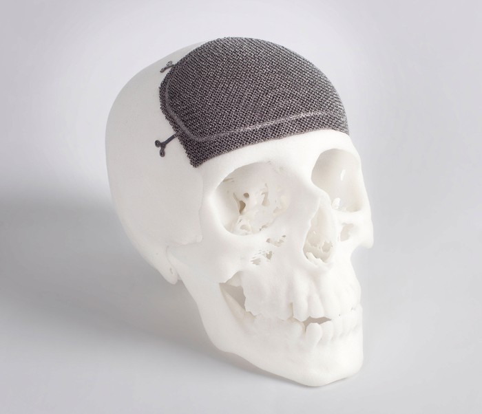 Skull with a 3D-printed implant.