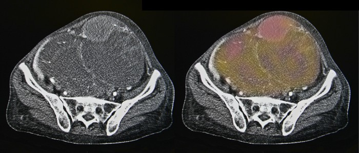 CT scan of ovarian cancer