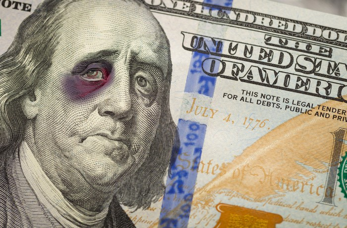 Benjamin Franklin with a bruised eye appearing on the $100 bill.