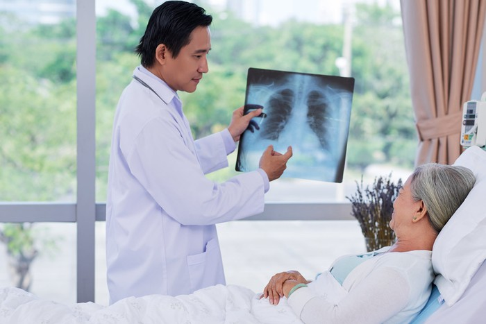 Doctor showing a patient a chest x-ray