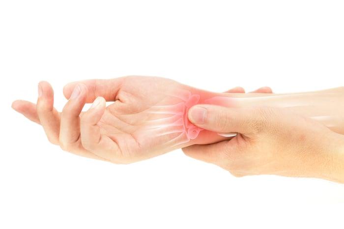Wrist with arthritis pain