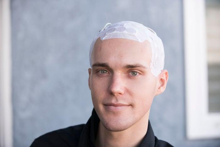 patient wearing Optune on head