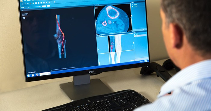 Male medical professional looking at 3D images of anatomical parts on a computer screen.