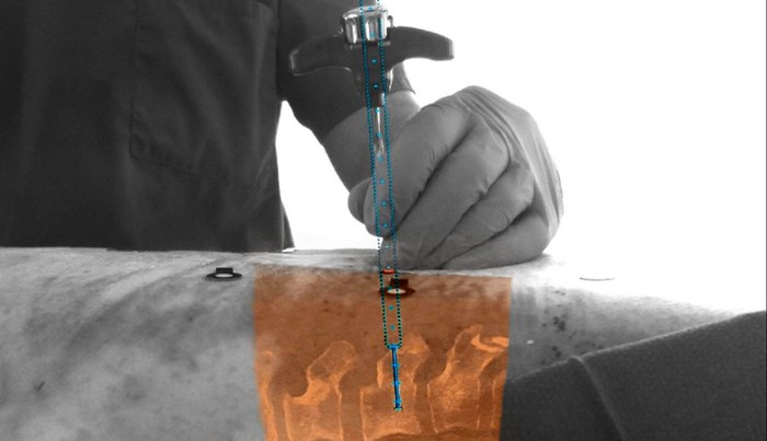 A surgeon inserting a tool into a body with the x-ray of the insides visible.