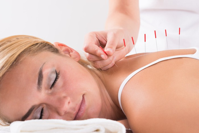 Woman lying down with person sticking acupuncture needles in her back