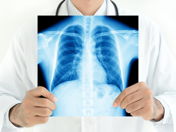 doctor with chest lung x-ray