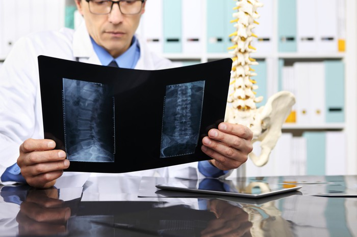 Doctor looking at an X-ray of a spine with a model of a spine in the background