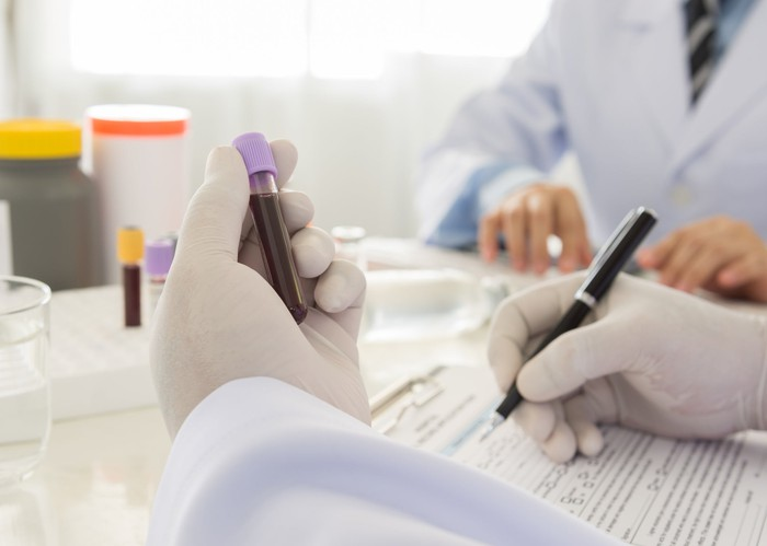 A pharmaceutical lab researcher holding a vial of blood and making notes.
