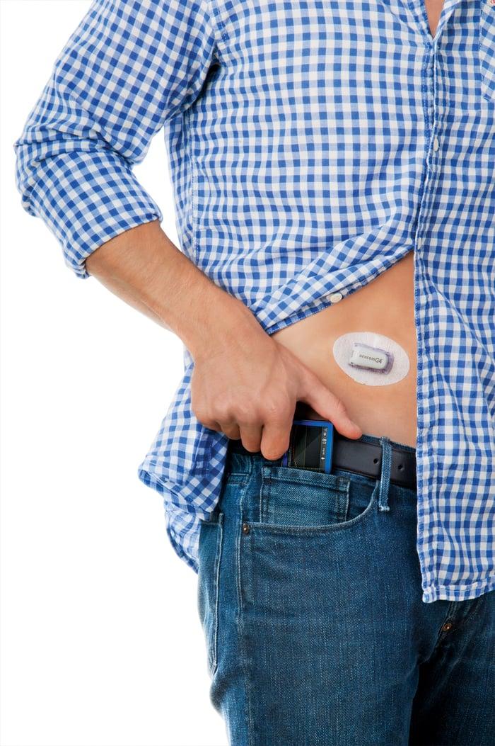 Dexcom receiver and patch on a man body