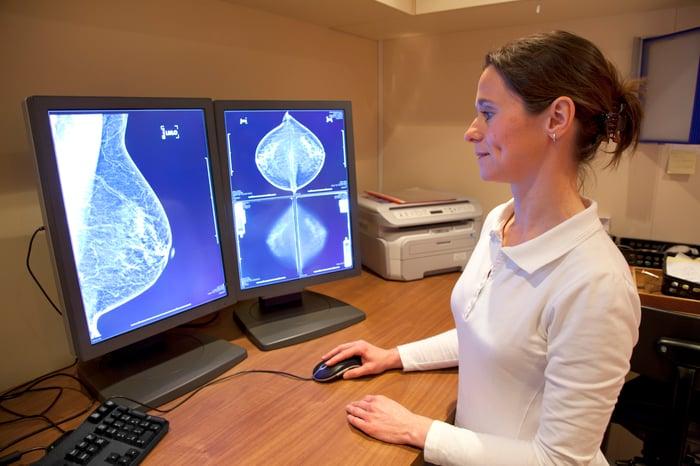 Woman looking at mamogram