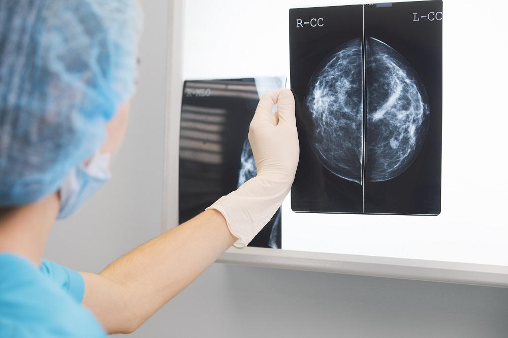 Medical professional examining mammogram.