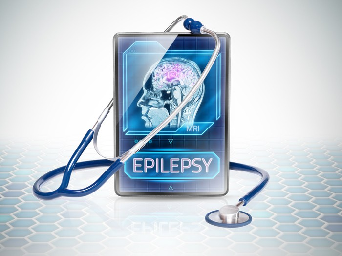 A stethoscope rests on a tablet displaying a graphic of a person's brain and the word epilepsy.