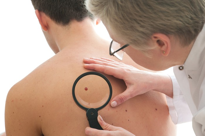 Doctor looking at a spot on a patient's back with a magnifying glass