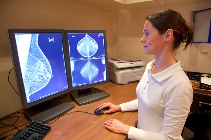 A female technician looking at a mammogram on a computer screen