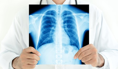 doctor-with-chest-lung-x-ray