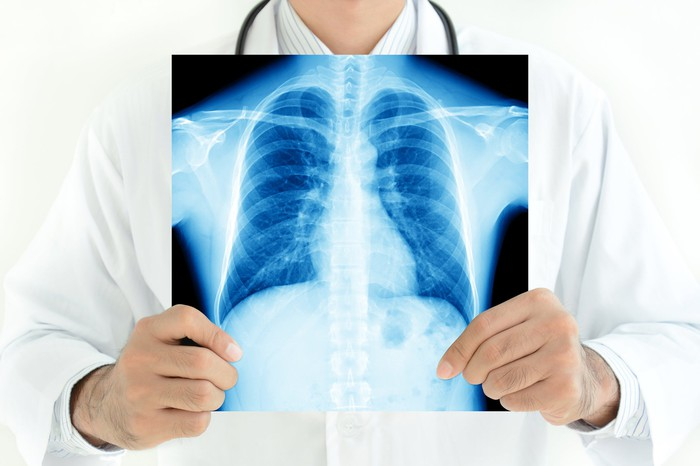 Doctor holding up a chest X-ray in front of him.