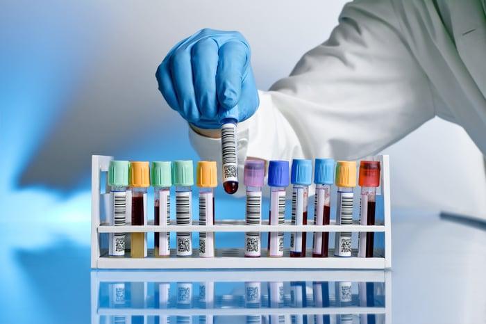 Rack of blood test samples.