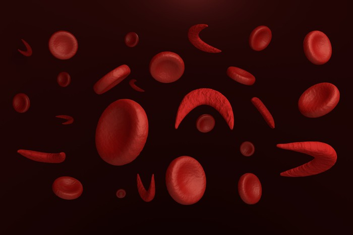 Normal and sickled red blood cells.