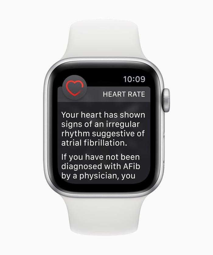 An Apple Watch with a notification of an irregular heart rhythm.