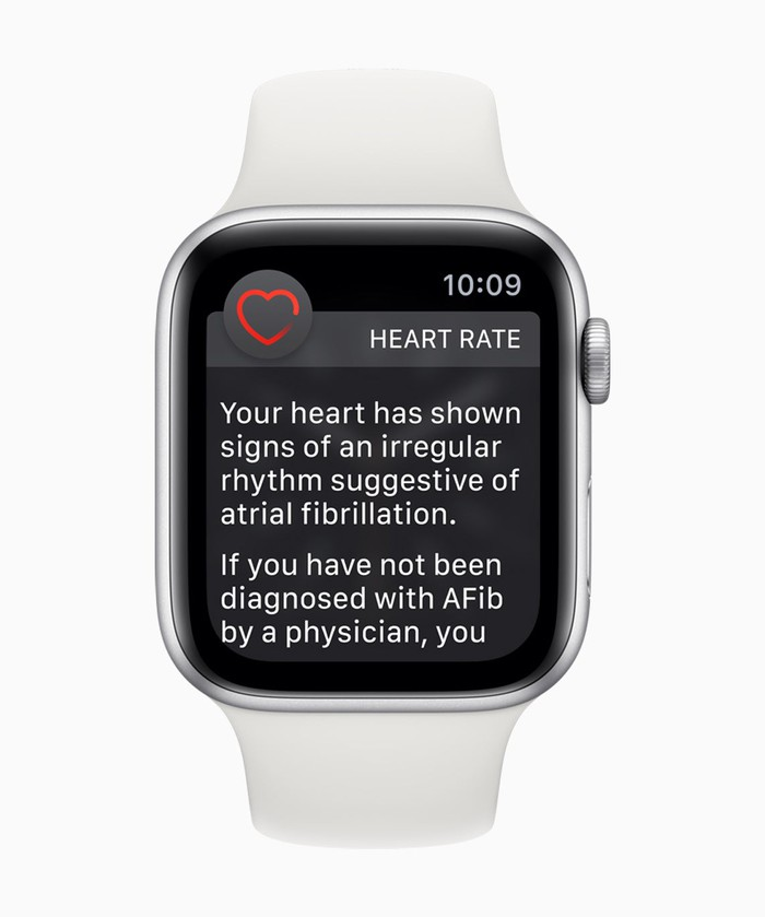 """An Apple Watch display that reads, """"You heart has shown signs of irregular rhythms suggestive of atrial fibrillation."""