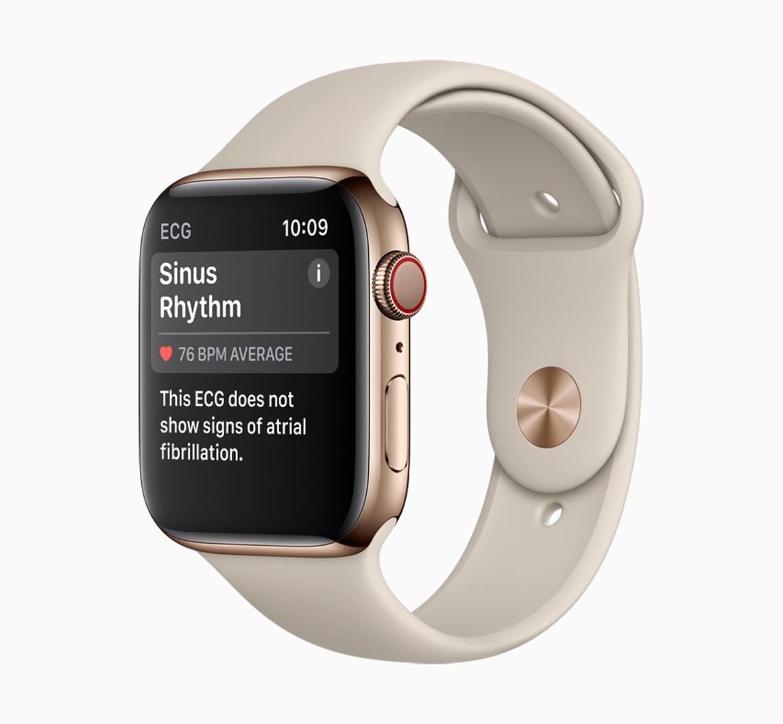 An Apple Watch displaying a sinus rhythm reading.