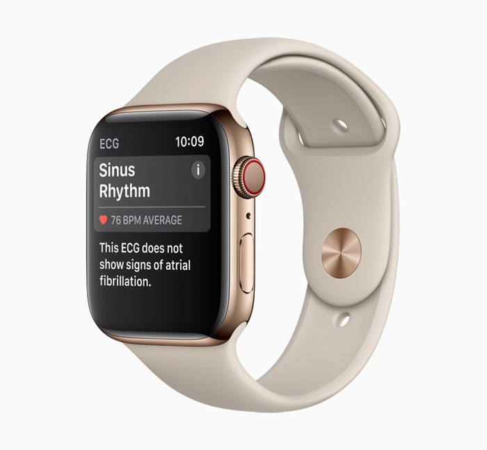An Apple Watch displaying a sinus rhythm reading.