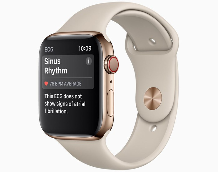 Image of the Apple Watch.