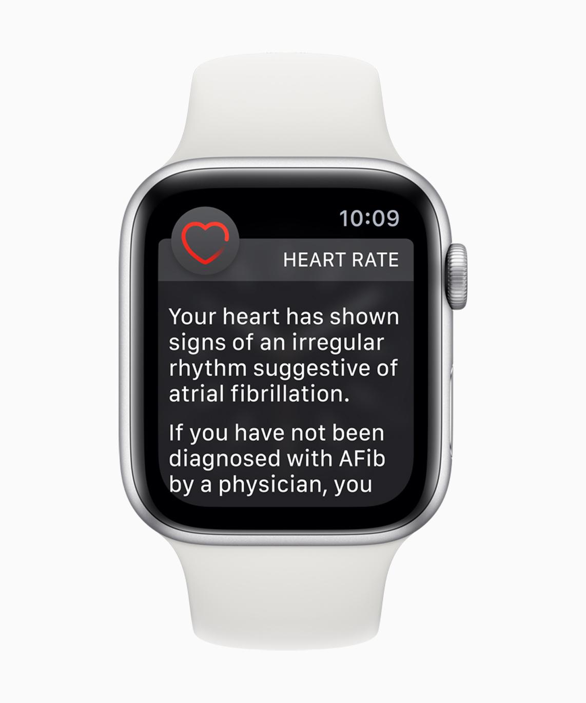 "An Apple Watch with a ""rhythm suggestive of Atrial Fibrillation"" notification"