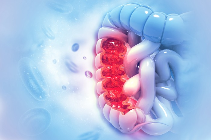 Image of a human colon bisected to show an reddish area exhibiting cancerous cells set against a bluish background.