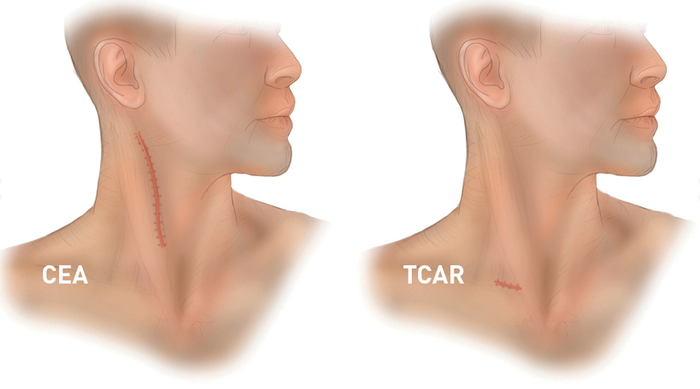 Two illustrated human heads and necks with neck scars. CEA scar is big, TCAR scar is small.