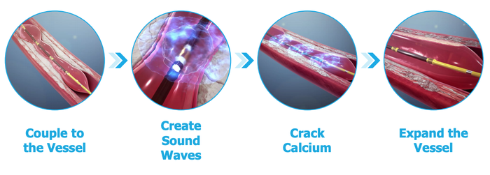 A graphic displaying the steps of inserting a ShockWave intravascular lithotripsy device and breaking calcium