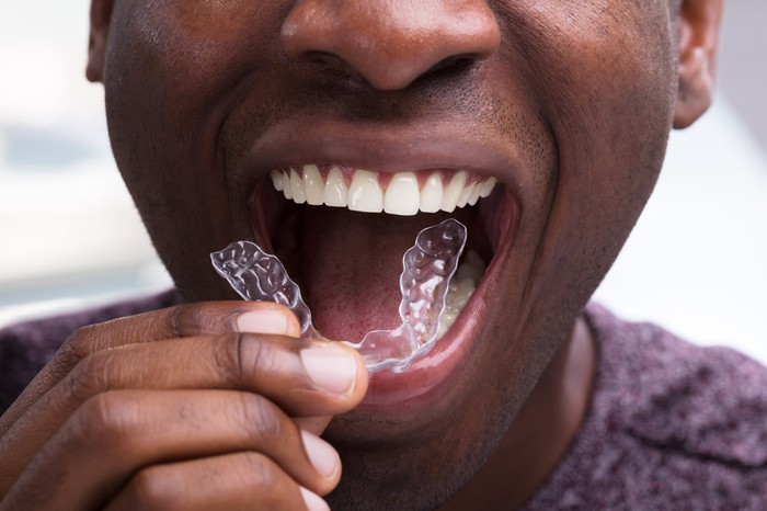 A young man putting a dental aligner into his mouth.