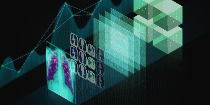 An x-ray image of lungs and digital data, illustrating NVIDIA's GPU use for healthcare imaging.