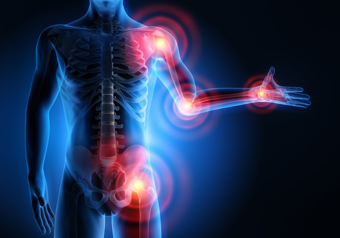 An X-ray-like illustration shows rheumatoid arthritis locations on body.