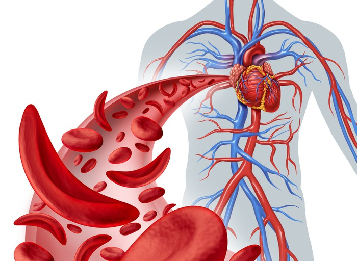 Illustration of circulatory system with sickle cells inside an artery.