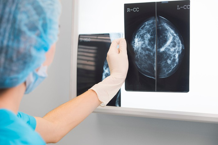 Medical professional holding a picture of a mammogram.